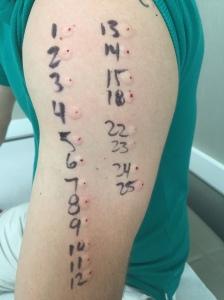 Teste de Alergia 2