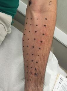 Teste de alergia 1